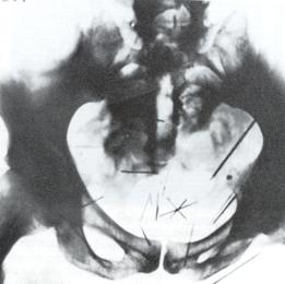 Plainfield - Ted Bundy's Volkswagon - Split CD